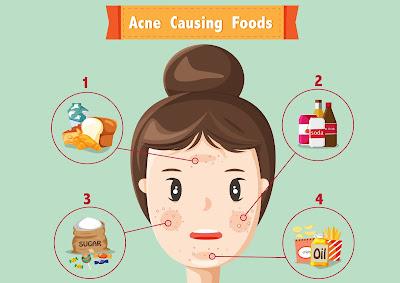 Hindari 9 Makanan Penyebab Jerawat Sebelum Anda Menyesal !