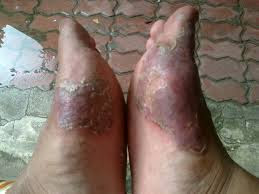 kulit telapak kaki mengelupas dan gatal sering kambuh