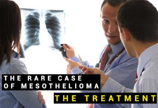 The Rare Case of Mesothelioma, The Treatment