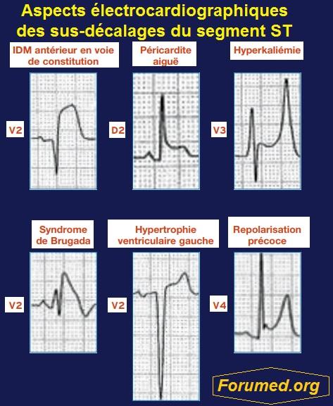 Aspects électrocardiographiques des sus-décalages du segment ST