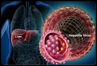 referred to as types A, B, C, D and E. While all of these viruses cause liver disease