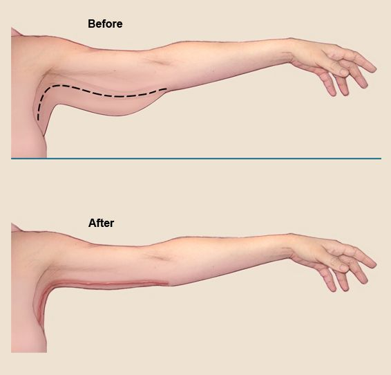 How To Lose Fat From ARM – LEG and PECTORAL Full Guide