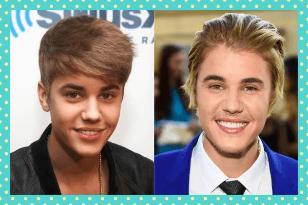 Justin Bieber Eski Yeni Dişleri