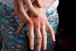 Dermatitis berupa kulit gatal dan kemerahan