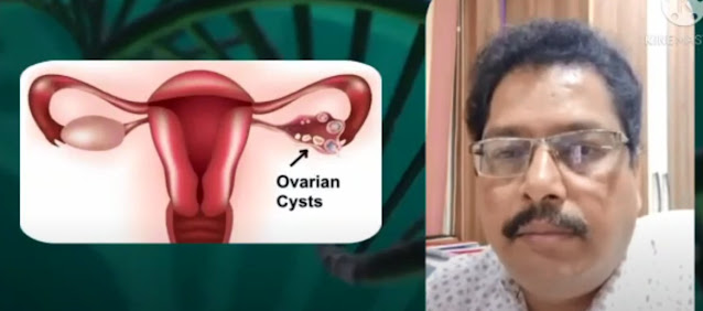 What are the components of a Dermoid Cyst?