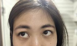wrinkles and dark circles