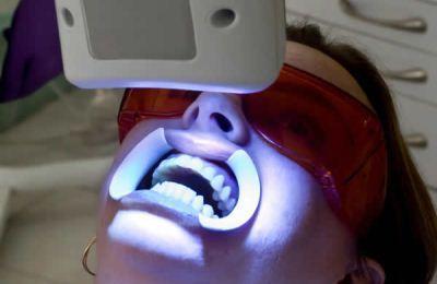 Pemutihan gigi dengan laser