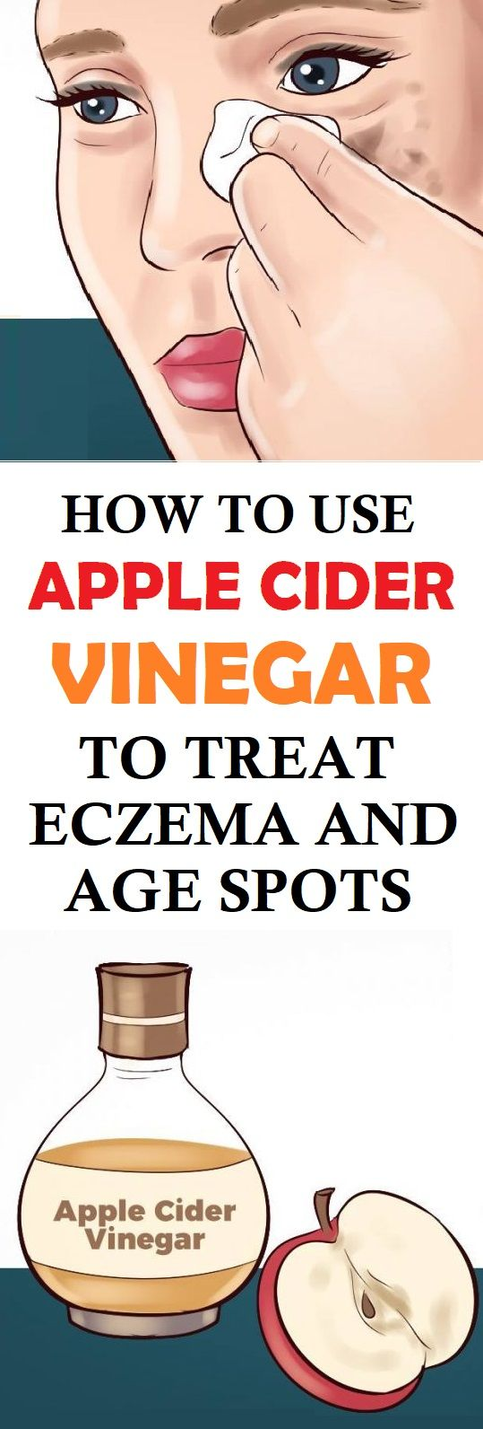 How to Use Apple Cider Vinegar to Treat Eczema and Age