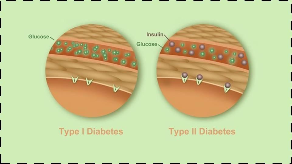 como prevenir la diabetes gestacional