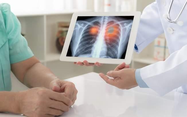 +Câncer de pulmão afeta mais de 1,5 milhão de pessoas no mundo