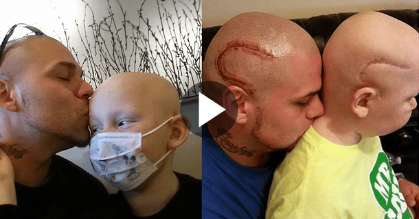 The World's Best Dad Just Got A Tattoo To Match His Son's Cancer Surgery Scar!