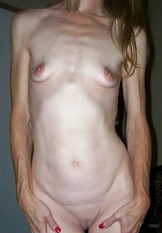 droopy tit stretch marks