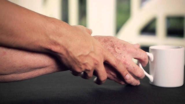 Obat Penyakit Parkinson Herbal