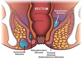 Obat Abses Anal atau Anus Herbal Alami Yang Ampuh dan Aman
