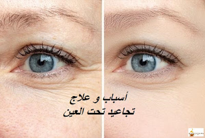 أسباب و علاج تجاعيد تحت العين