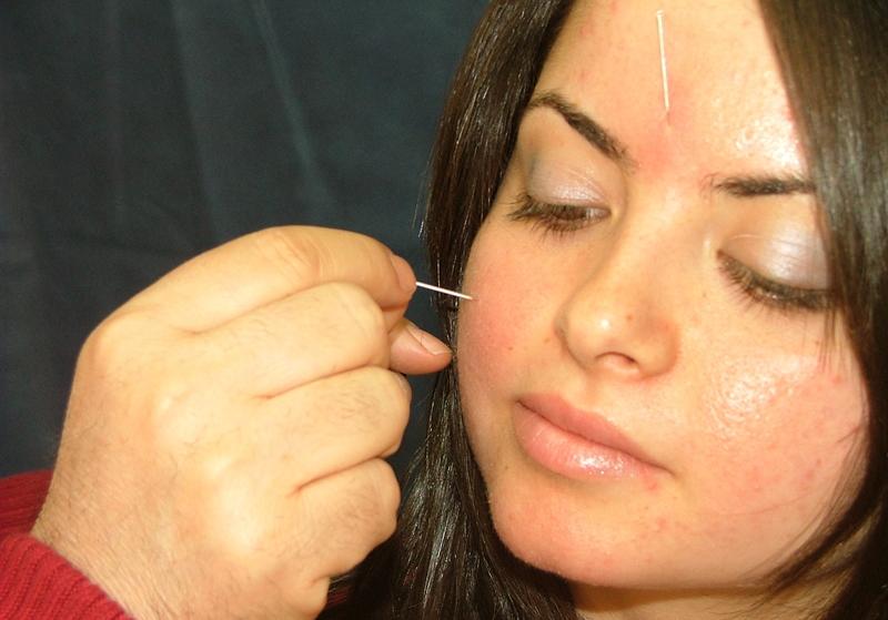 Huzursuz Bacak Sendromu ve Akupunktur Tedavisi