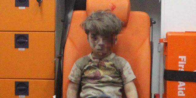 Tragisnya Konflik Suriah Meninggalkan Jejak yang Begitu Menyakitkan Dunia