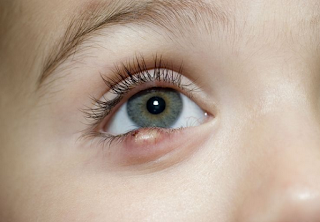 Cara mengatasi bintitan di kelopak mata