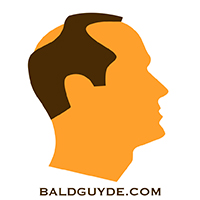 Male Pattern Baldness Stage 4 Hair Loss
