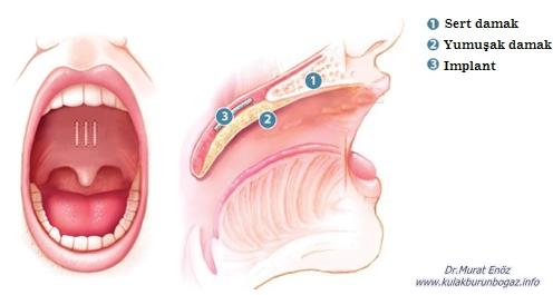 Pillar Implant Horlama Tedavisi - Damak İmplantı