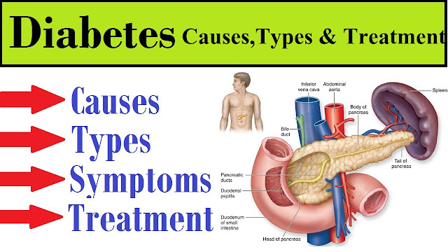 10 Early Symptoms of Diabetes Cause and Treatment Measures