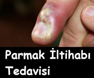 Parmak İltihabı Tedavisi