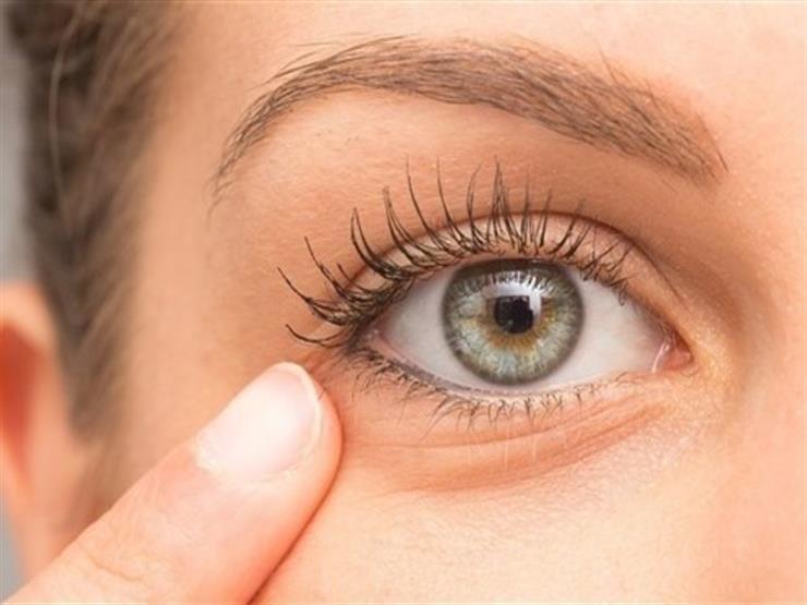 15 طريقة طبيعية للتخلص من الانتفاخات تحت العينين