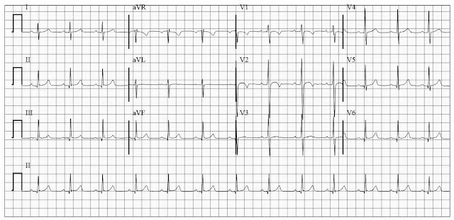Normal ECG of a child