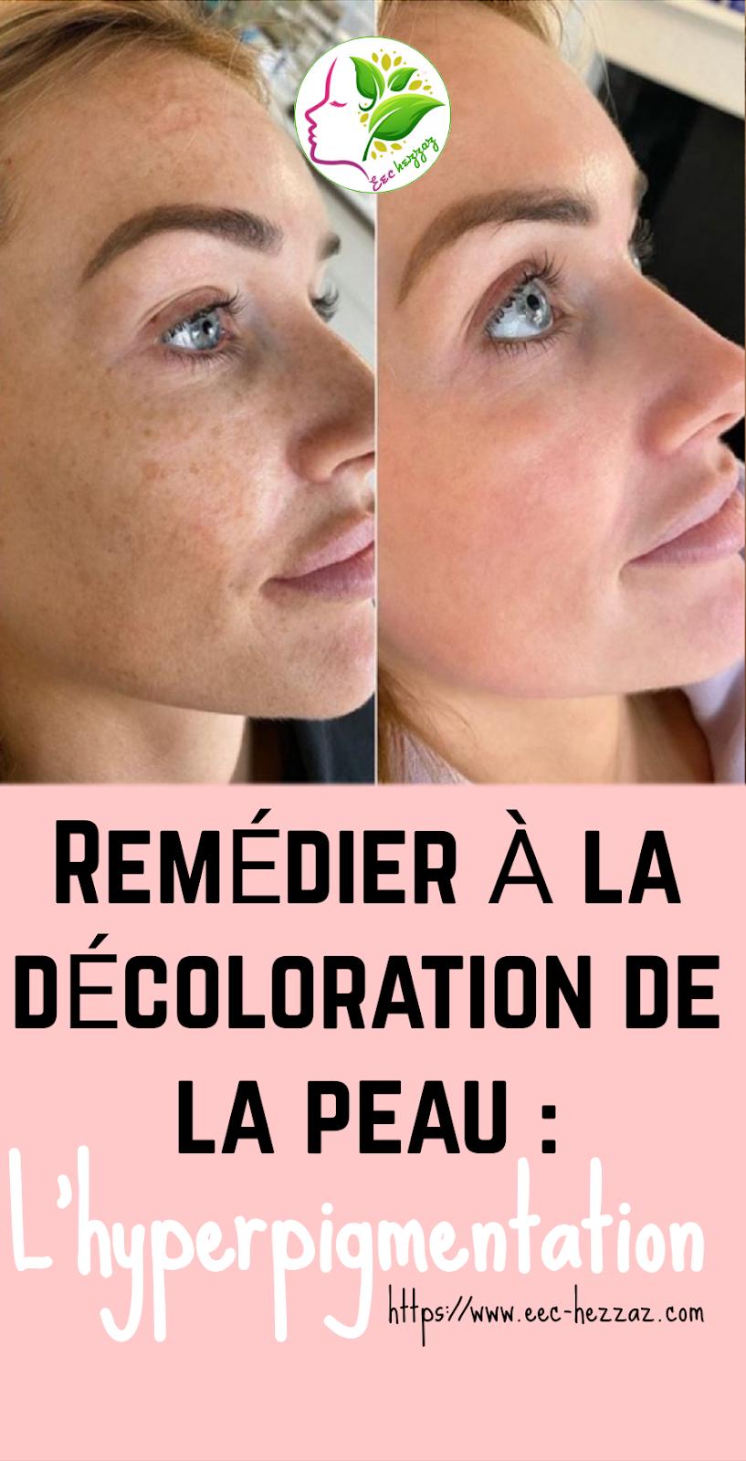 Remédier à la décoloration de la peau : L'hyperpigmentation