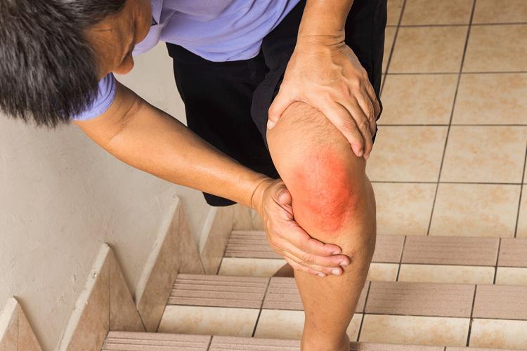 Como a Artrite Reumatóide Faz Você se Sentir?