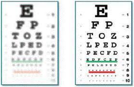 Benefit Of Ashperic Monofocal Lens