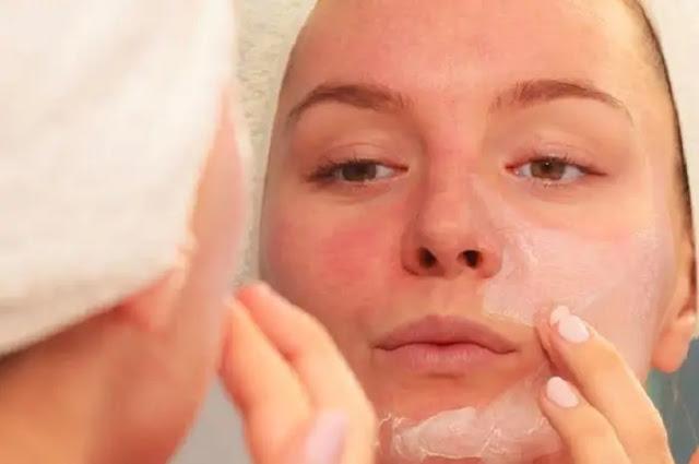 Cara Menghilangkan Muka Merah Akibat Cream