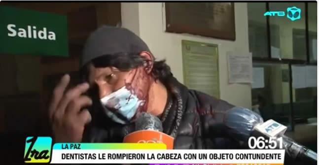 Dos dentistas rompen la cabeza con nunchaku a padre que reclamó por su hijo