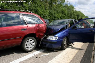 Auto Accidents in Cupertino