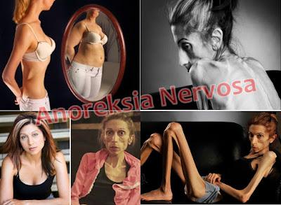 Cara Mengatasi Anoreksia Nervosa