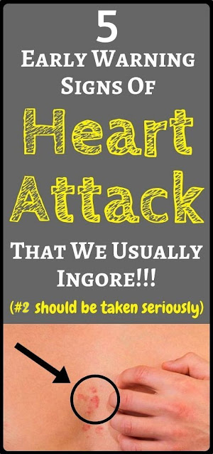Here Are 5 Warning Signs Of A Heart Attack. All Women Need To Know!!!
