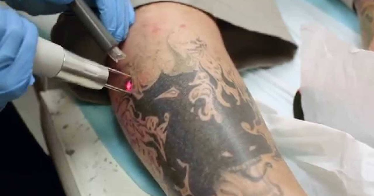 Make ur health better how to remove tattoo permanently at for Ways to remove tattoos