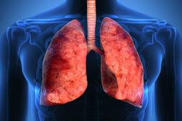 Bukan Hanya Rokok, Hobi yang Satu Ini Bisa Merusak Paru-paru