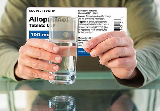 Berapa dosis Allopurinol yang diperlukan dan berapa harganya ?