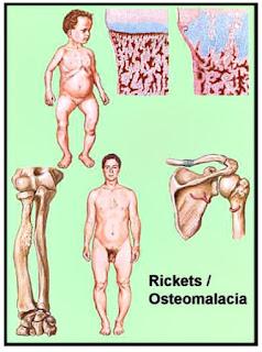 Vitamina D enfermedad osteomalacia