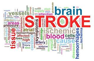 Cara mengobati penyakit stroke ringan secara alami