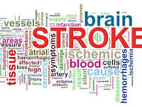 Obat Stroke Lidah