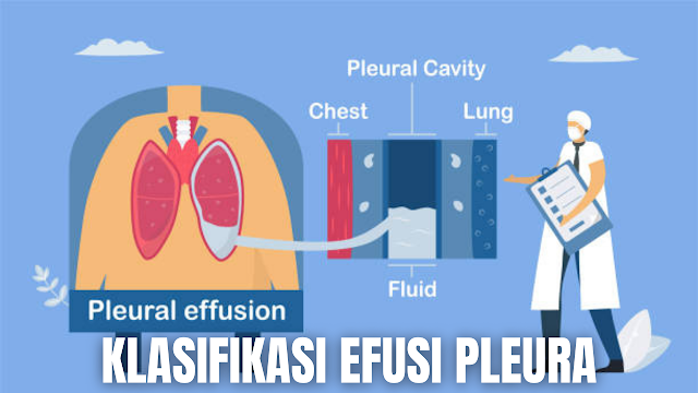 "Klasifikasi Efusi Pleura Pada Manusia Efusi Pleura Transudat Pada efusi jenis transudat ini keseimbangan kekuatan menyebabkan pengeluaran cairan dari pembuluh darah. Mekanisme terbentuknya transudat karena peningkatan tekanan hidrostatik (CHF), penurunan onkotik (hipoalbumin) dan tekanan negatif intra pleura yang meningkat (atelektasis akut).  Ciri-ciri cairan :  Serosa jernih Berat jenis rendah (dibawah 1,012) Terdapat limfosit dan mesofel tetapi tidak ada neutrofil Protein < 3 %  Penimbunan cairan transudat dalam rongga pleura dikenal dengan hydrothorax, penyebabnya :  Payah jantung Penyakit ginjal (SN) Penyakit hati (SH) Hipoalbuminemia (malnutrisi, malabsorbsi)    Efusi Pleura Eksudat Eksudat ini terbentuk sebagai akibat penyakit dari pleura itu sendiri yang berkaitan dengan peningkatan permeabilitas kapiler (misal pneumonia) atau drainase limfatik yang berkurang (misal obstruksi aliran limfa karena karsinoma).  Ciri cairan eksudat :  Berat jenis > 1,015 % Kadar protein > 3 % atau > 30 g/dl Ratio protein pleura berbanding LDH serum . 0,6 LDH cairan pleura lebih besar dari pada 2/3 batas atas LDH serum normal Warna cairan keruh  Penyebab dari efusi eksudat ini adalah  kanker : karsinoma bronkogenik, mesotelioma atau penyakit metastatik ke paru atau permukaan pleura Infark paru Pneumonia Pleuritis virus    Nah itu dia bahasan dari Klasifikasi Efusi Pleura pada manusia, melalui bahasan di atas bisa diketahui mengenai Klasifikasi Efusi Pleura pada manusia. Mungkin hanya itu yang bisa disampaikan di dalam artikel ini, mohon maaf bila terjadi kesalahan di dalam penulisan, dan terimakasih telah membaca artikel ini.""God Bless and Protect Us"""