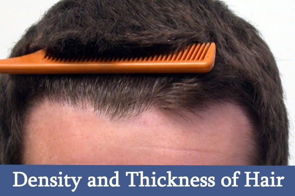 Density and Thickness of Hair