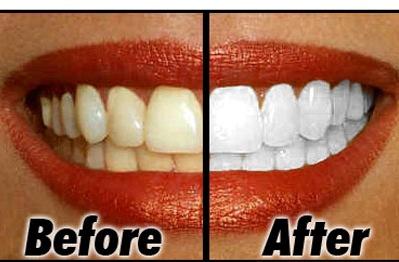 Cara Memutihkan Gigi Yang Kuning Dan Berkarang Secara Alami Brad