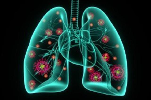 Symptoms of pneumonia in adults