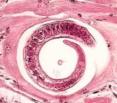 Larva Trichinella spiralis