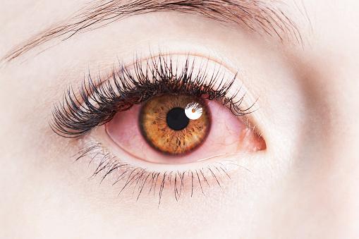 Penyebab Umum Mata Memerah Saat Pakai Softlens