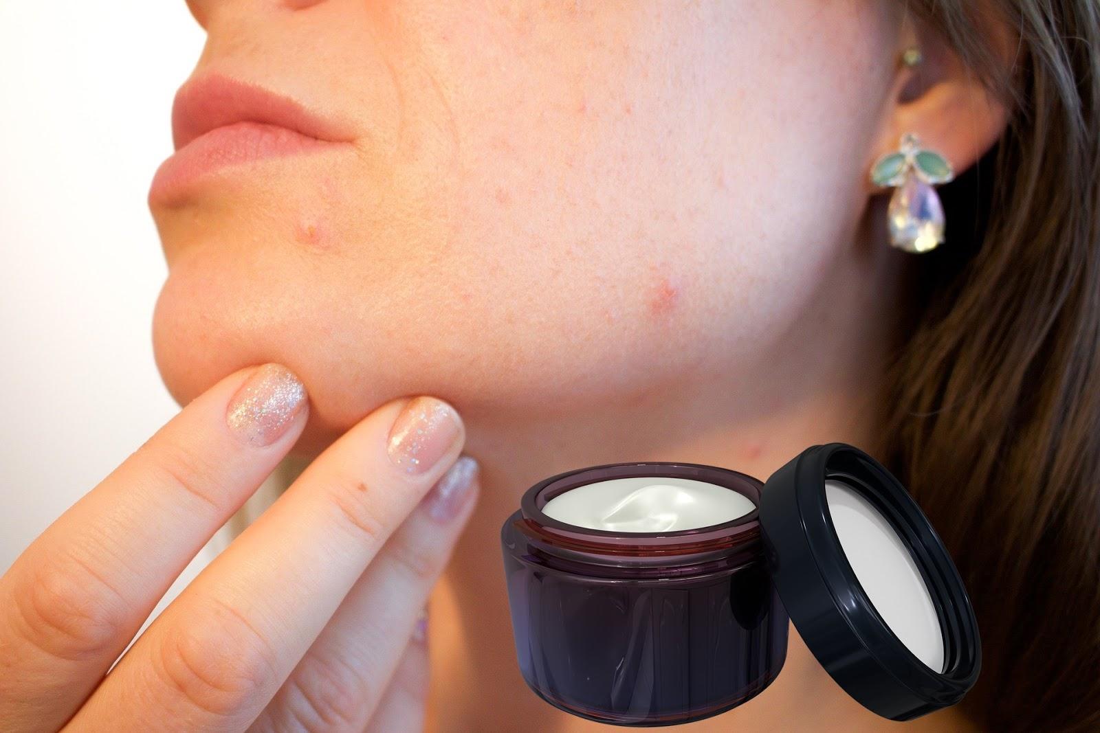 Tip Memilih Skincare untuk Kulit yang Berjerawat 5 Tip Memilih Skincare untuk Kulit yang Berjerawat
