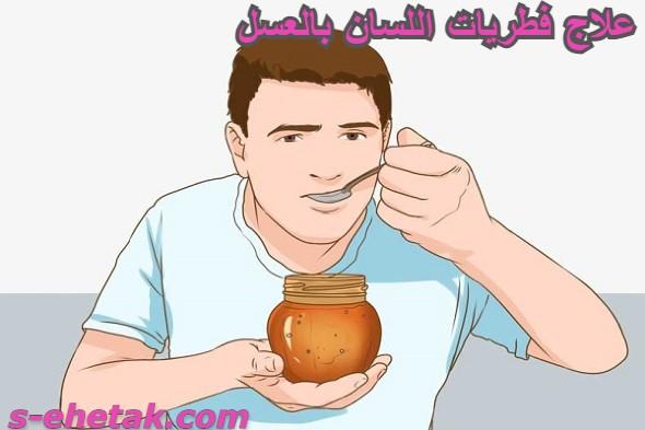 علاج فطريات اللسان بالعسل